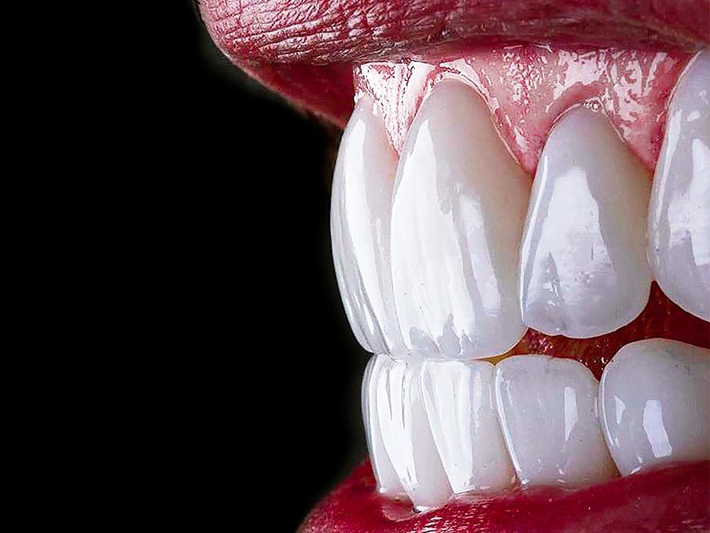 Zahnwerk Bückeburg